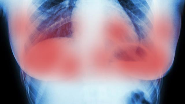 Apbrīnojami! Zinātnieks Amsterdamā pilnībā iznīcina krūts vēzi 11 dienās bez ķīmijterapijas!