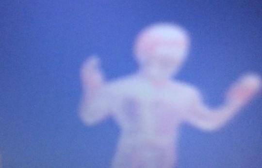 FOTO: Ar Dauna sindromu sirgstošs zēns nofotografējis savu sargeņģeli!